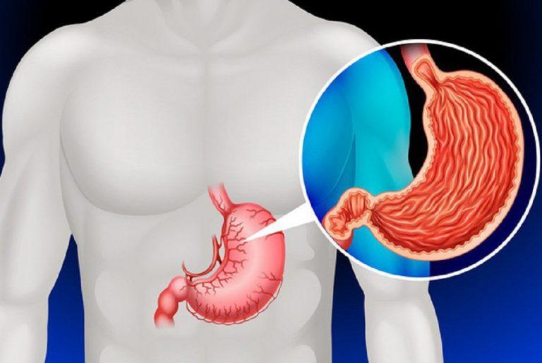 4 yếu tố nguy cơ gây ung thư dạ dày