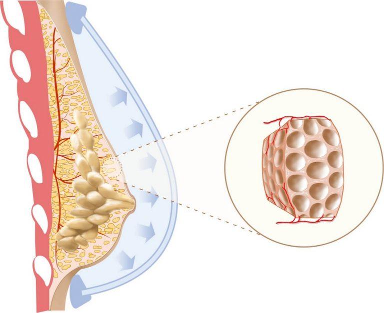 Có tới 4 loại u vú lành tính mà nữ giới hay gặp nhưng nên chữa trị từ sớm để ngăn ngừa nguy cơ phát triển thành ung thư vú